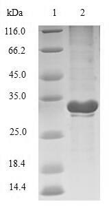SDS-PAGE- Recombinant protein Escherichia phoP