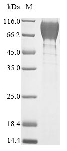 SDS-PAGE- Recombinant protein Mouse Gucy2c
