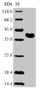 SDS-PAGE- Recombinant protein Zaire VP35