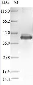 SDS-PAGE- Recombinant protein Human STC1