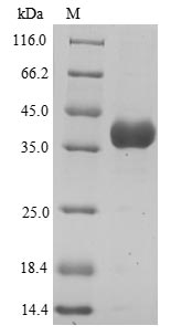 SDS-PAGE- Recombinant protein Human ANXA3