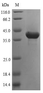SDS-PAGE- Recombinant protein Human ASPA