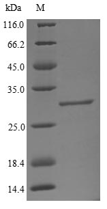 SDS-PAGE- Recombinant protein Bovine B4GALT1