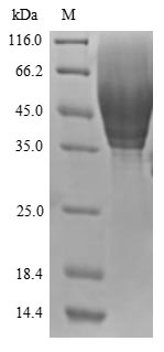 SDS-PAGE- Recombinant protein Human CD63