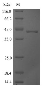 SDS-PAGE- Recombinant protein Saccharomyces CYS3