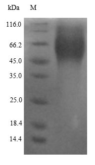 SDS-PAGE- Recombinant protein Human ESR1