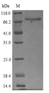 SDS-PAGE- Recombinant protein Human FBLN1