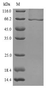 SDS-PAGE- Recombinant protein Mouse Gba