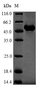 SDS-PAGE- Recombinant protein Mouse Gc