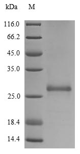 SDS-PAGE- Recombinant protein Human GSTP1