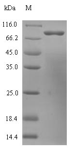 SDS-PAGE- Recombinant protein Human HDC