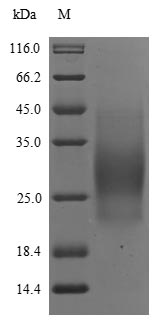 SDS-PAGE- Recombinant protein Human IL5