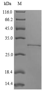 SDS-PAGE- Recombinant protein Rabbit ITGB8