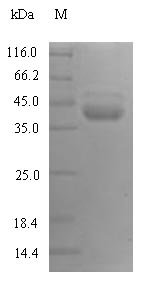 SDS-PAGE- Recombinant protein Human KLKB1
