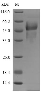 SDS-PAGE- Recombinant protein Rat Proc