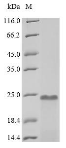 SDS-PAGE- Recombinant protein Human PTMA