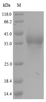 SDS-PAGE- Recombinant protein Human RANBP2