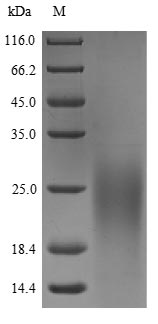 SDS-PAGE- Recombinant protein Human SLURP1