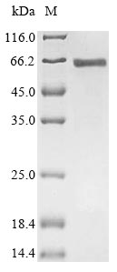 SDS-PAGE- Recombinant protein Human SRF