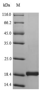 SDS-PAGE- Recombinant protein Human TNF