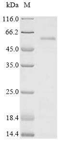 SDS-PAGE- Recombinant protein Human vif