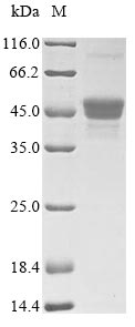SDS-PAGE- Recombinant protein Candida PRA1