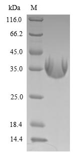 SDS-PAGE- Recombinant protein Epstein-Barr LMP1