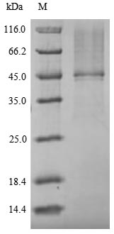 SDS-PAGE- Recombinant protein Cryptococcus URA5