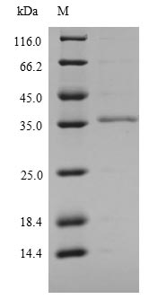 SDS-PAGE- Recombinant protein Mouse Ly6c1