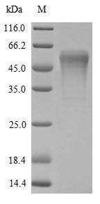 SDS-PAGE- Recombinant protein Rat Try4