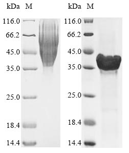 SDS-PAGE- Recombinant protein Aggregatibacter ltxA