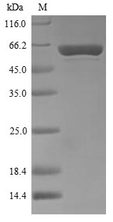 SDS-PAGE- Recombinant protein Thermus polA