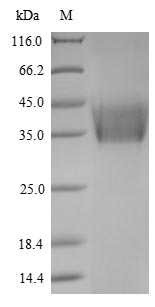 SDS-PAGE- Recombinant protein Newcastle HN