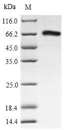 SDS-PAGE- Recombinant protein Lassa N