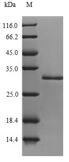 SDS-PAGE- Recombinant protein Staphylococcus entH