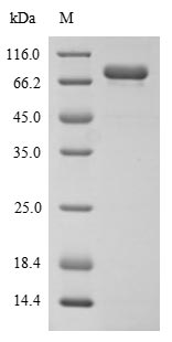 SDS-PAGE- Recombinant protein Human MADCAM1