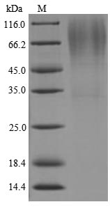 SDS-PAGE - Recombinant Lysyl endopeptidase
