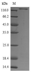 SDS-PAGE- Recombinant protein Aspergillus eglD