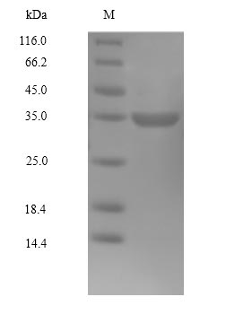 SDS-PAGE- Recombinant protein Human CDK4
