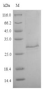 SDS-PAGE- Recombinant protein Toxocara TES-26