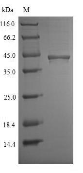 SDS-PAGE- Recombinant protein Mouse Chid1