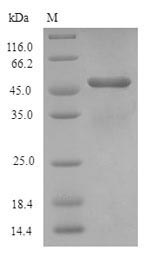 SDS-PAGE- Recombinant protein Human AQP1