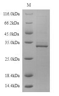 SDS-PAGE- Recombinant protein Human CD19