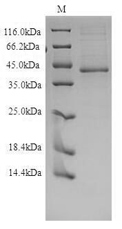 SDS-PAGE- Recombinant protein Human EDNRB