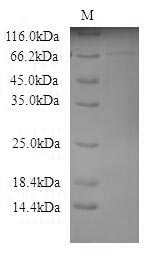 SDS-PAGE- Recombinant protein Mouse Galc