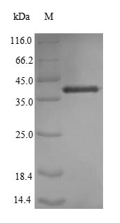 SDS-PAGE- Recombinant protein Human IL7