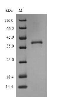 SDS-PAGE- Recombinant protein Human SLC31A1