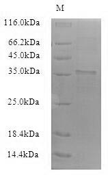 SDS-PAGE- Recombinant protein Bacillus yuaB
