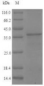SDS-PAGE- Recombinant protein Vaccinia PS/HR