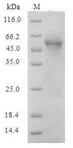 SDS-PAGE- Recombinant protein Yersinia yopB